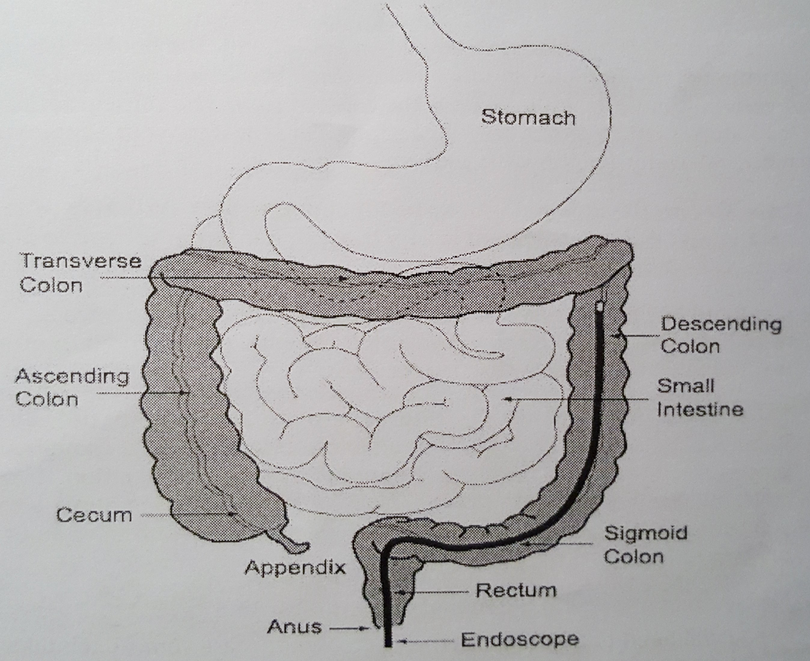 Being told it's bowel cancer in the middle of the colonoscopy is... an unusual way to hear